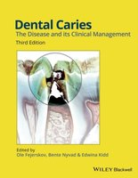 Dental Caries | 9781118935828